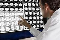 MRIの結果を確認する医師