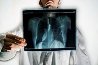 胸のレントゲン写真を持つ医師