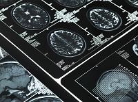 脳のブレーンスキャン