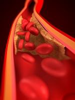 狭くなった動脈と赤血球