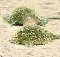 分裂する癌細胞(走査型電子顕微鏡)