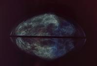 乳癌検診のX線写真