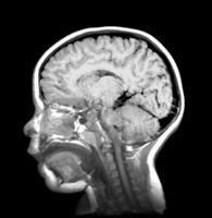 3歳 頭部 MRI画像