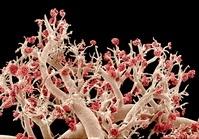 腎臓の血管(走査型電子顕微鏡)