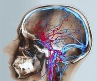 正常な脳の血液供給(CTスキャン)