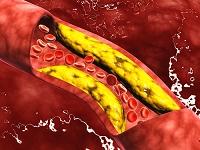 動脈を流れる脂肪物質