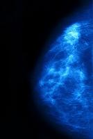 乳がん(腺癌) マンモグラフィー