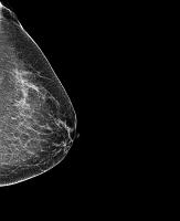 女性の胸のレントゲン