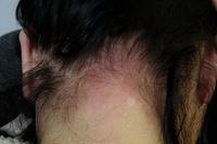髪染料アレルギー肌