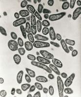 結核菌 顕微鏡写真