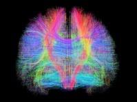 大脳髄質(白質)