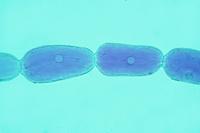 ムラサキツユクサ 雄蕊の毛の細胞 倍率150