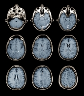 28歳の正常な脳のMRI