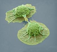 肺癌細胞(走査型電子顕微鏡)