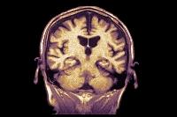 脳のMRI画像