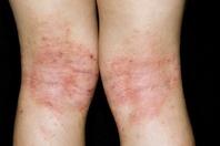 膝裏のアトピー性湿疹