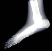 人の足のX線写真