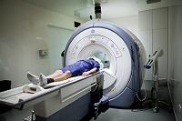 MRIスキャン