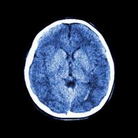 脳のCTスキャン