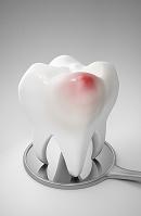 発赤症状の臼歯