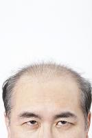 薄毛日本人男性の頭部