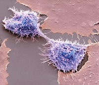 HeLa細胞 走査型電子顕微鏡写真