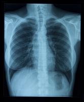 女性の胸部のX線