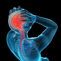 CG 頭痛 人体