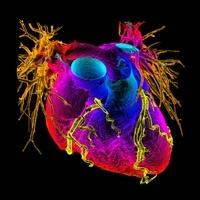 心臓の血管造影図