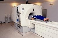 MRI画像診断