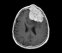 脳腫瘍(MRI画像)