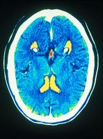 人の脳のCTスキャン
