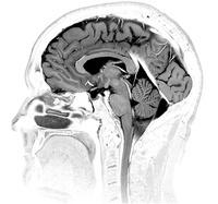 頭部 MRI画像