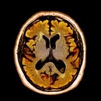 アルコール性認知症のMRI画像