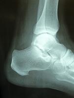足首骨折のレントゲン写真
