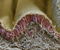 肺の横隔膜の断面(走査型電子顕微鏡)