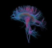 MRIスキャン 脳