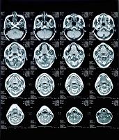 人の脳のスキャン
