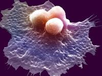 がん細胞を飲み込むマクロファージ